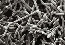 レジオネラ菌土用